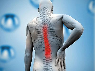 腰椎间盘膨出疗法_晚期腰椎间盘膨出怎么治疗?